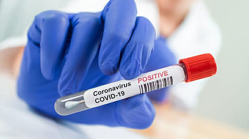 4 more persons tested positive, COVID-19 tally reaches 49 in Assam
