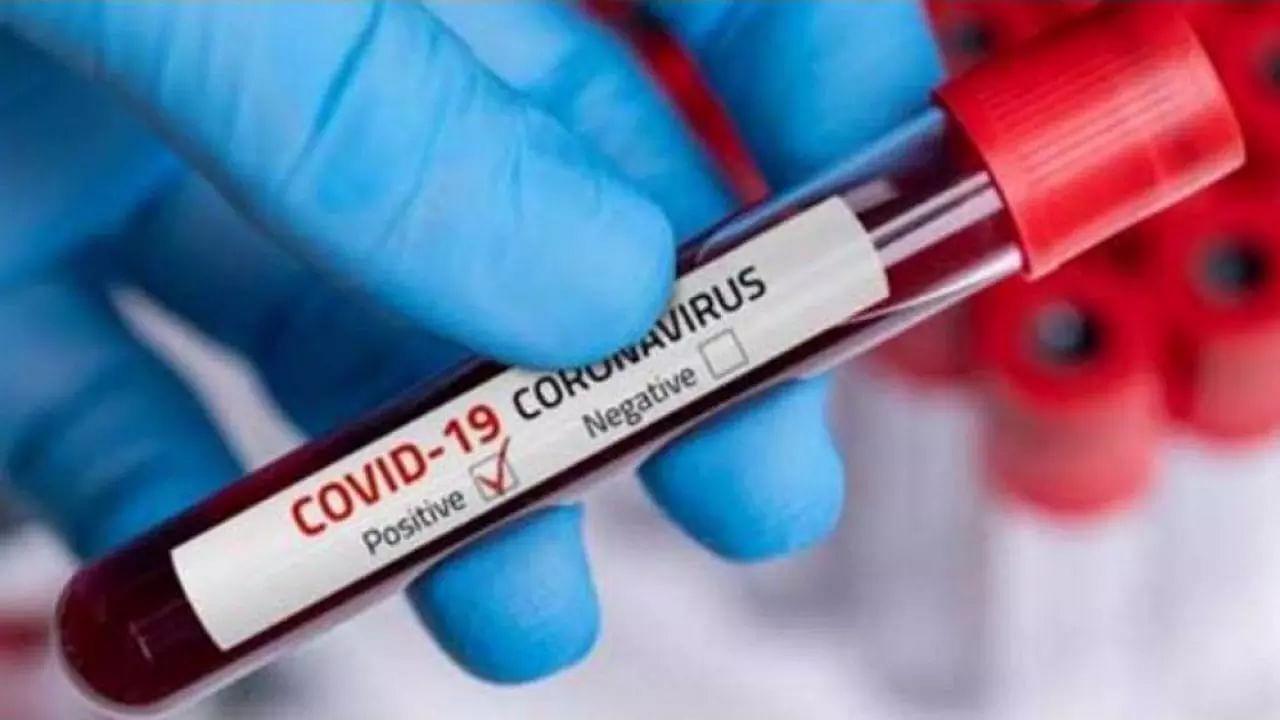 COVID-19 positive