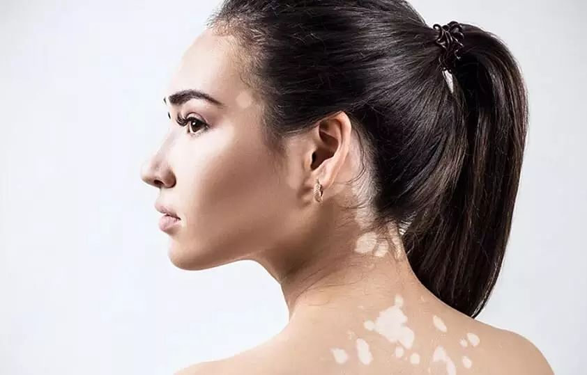 Vitiligo A Concern But Not A Worry Sentinelassam