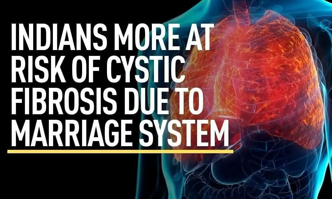 India may have a higher risk of Cystic fibrosis