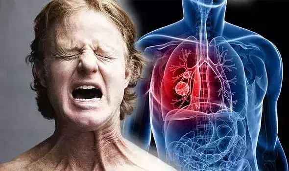 Lung cancer and its various symptoms