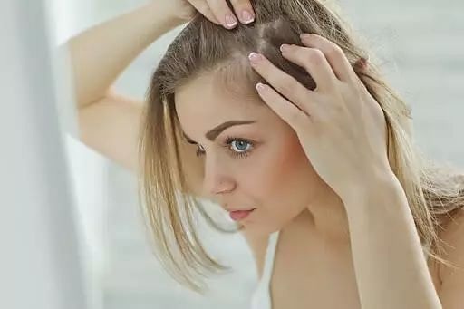 Best home remedies for treating dandruff
