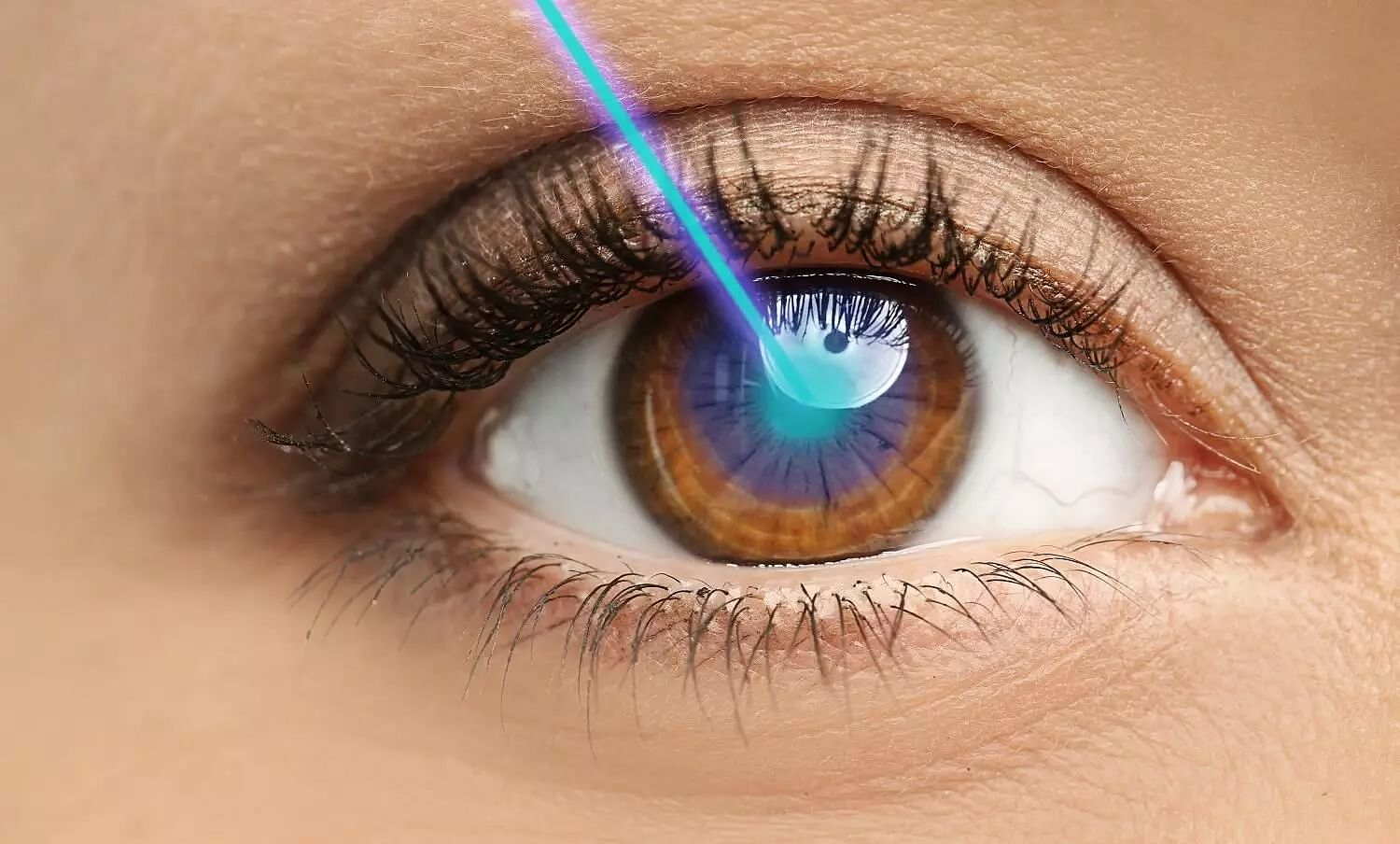 Why Is LASIK Eye Surgery Done? Risks & Side Effects